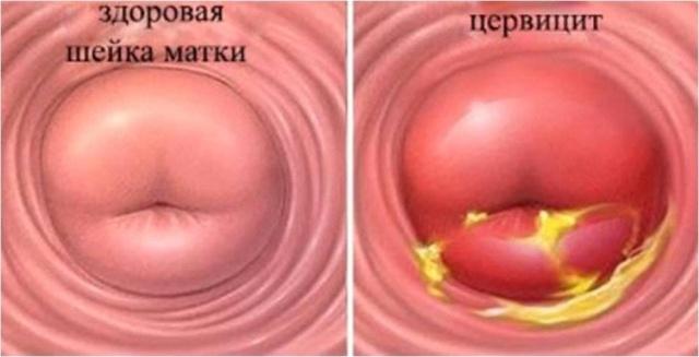 Цервицит после родов