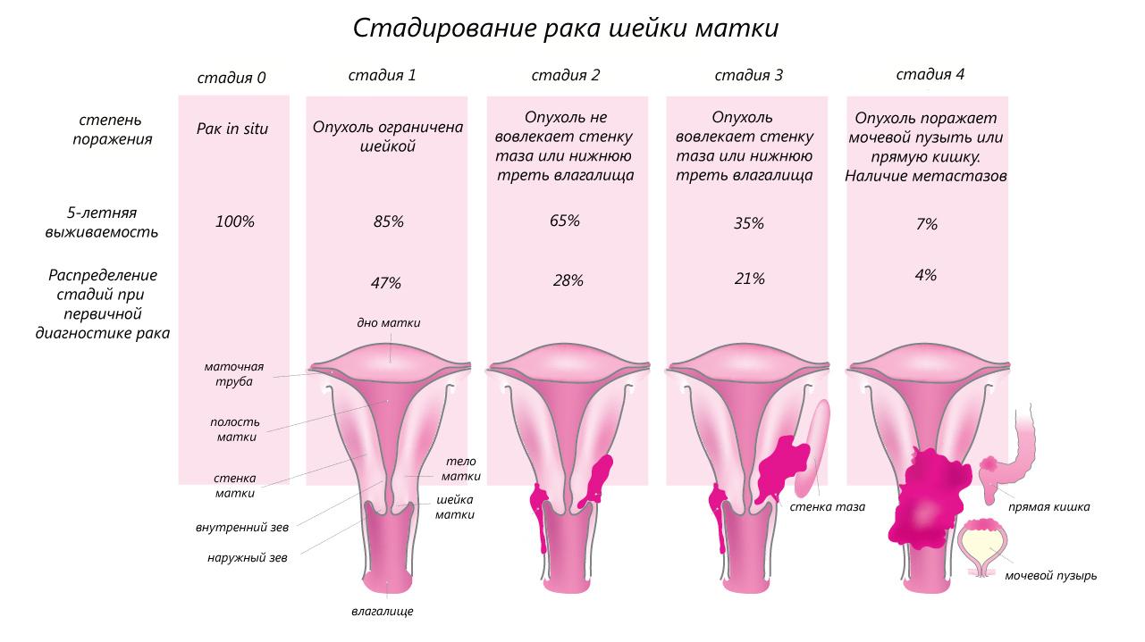 лечение рака шейки матки 3 степени