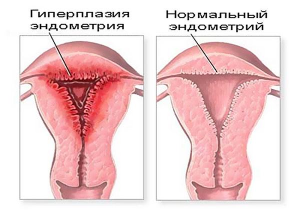Что такое гравидарный эндометрий и зачем он нужен