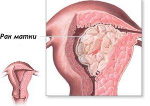 Высокодифференцированная аденокарцинома эндометрия