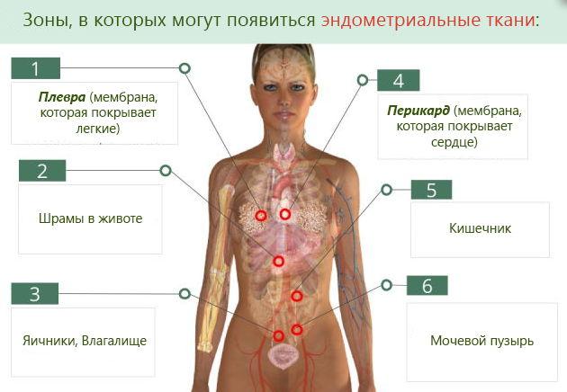 Стимуляция при эндометриозе