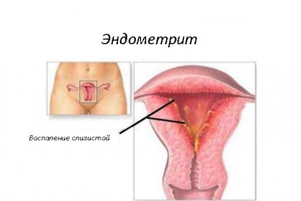 Эндометрит при планировании беременности