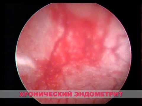 Эндометрит: причины, симптомы и лечение, особенности протекания