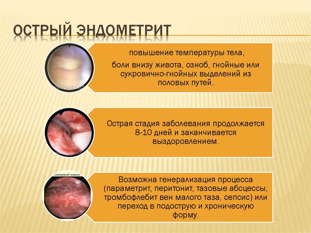 Лечение эндометрита народными средствами: подходы и средства