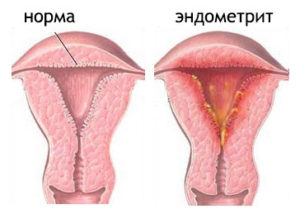Чем отличается эндометрит от эндометриоза