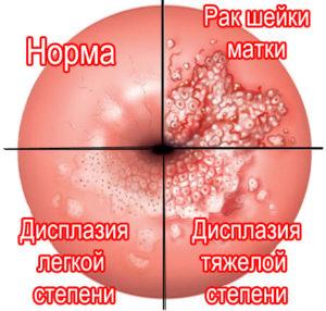 Беременность после лечения рака