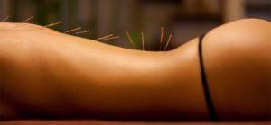 Лечение женского бесплодия иглоукалыванием