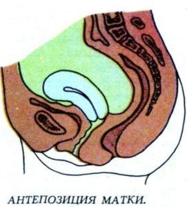 Антеверсия