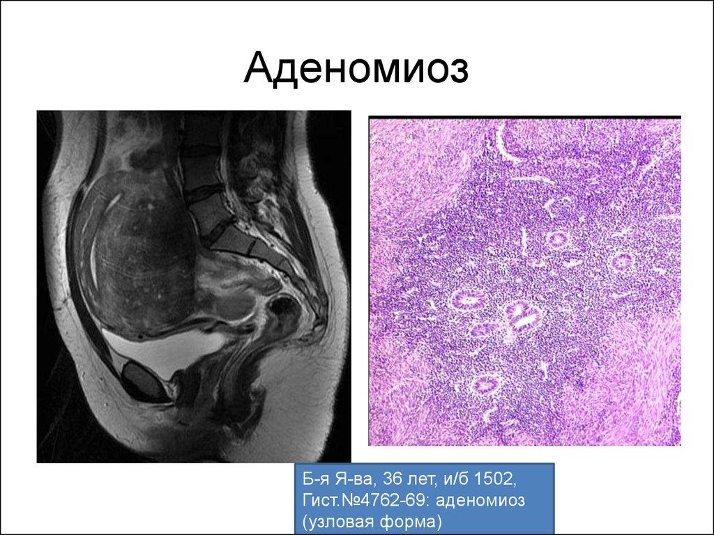 Аденомиоз и беременность: возможно ли родить ребенка при таком диагнозе