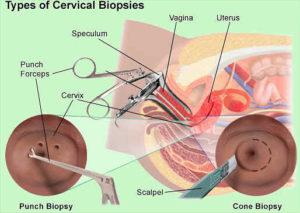 Биопсия и гистология шейки матки