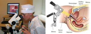 Биопсия шейки матки - назначение, подготовка и результат