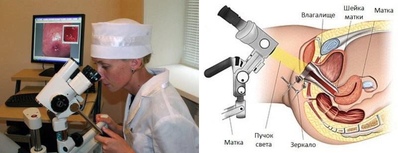 ebutsya-vse-foto-kogda-ginekolog-beret-kkal