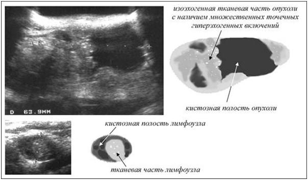 Узи полости матки после родов