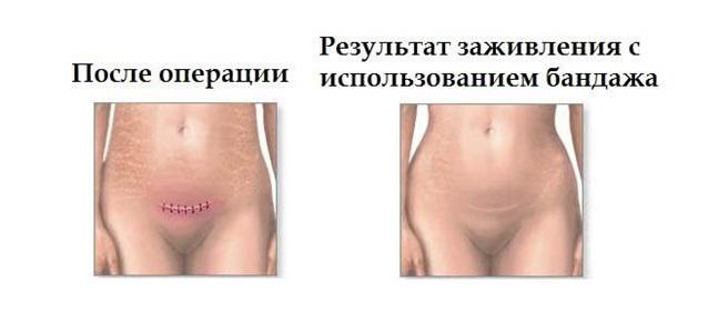 Бандаж после удаления матки. Как и сколько носить бандаж после удаления матки.