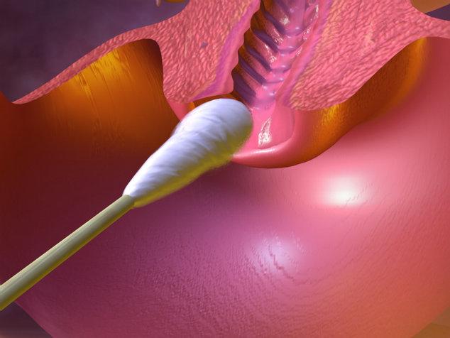 Цитология лейкоциты шейки матки