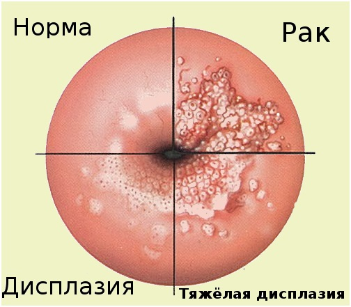 При кольпоскопии участок не окрасился йодом причины 58