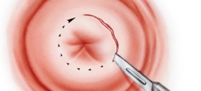 Радиоволновая биопсия шейки матки (радиоволновым методом)