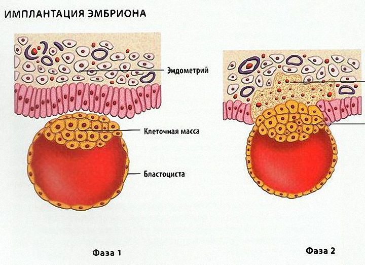 Боль в пояснице при имплантации эмбриона