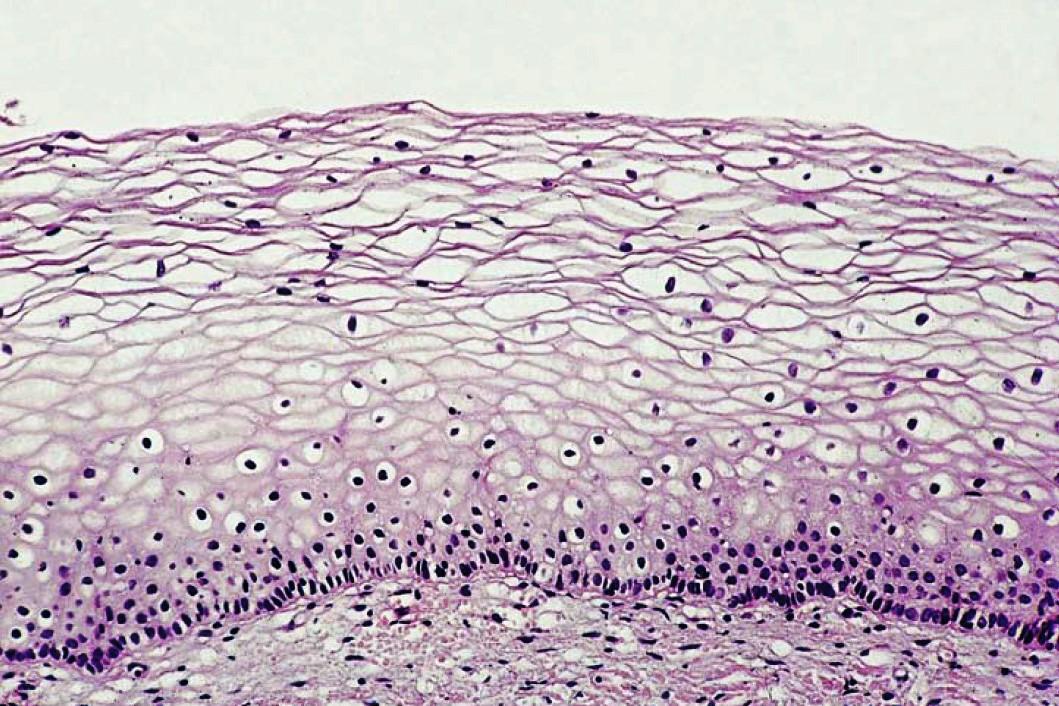 Кератоз и гиперкератоз шейки матки  что это за заболевания можно ли их вылечить