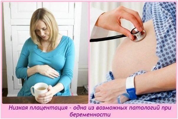 Прикрепление плаценты по задней стенке матки 29