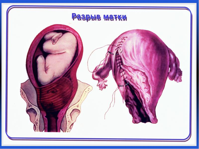 При последующих беременностях возникает риск повторной травмы шейки матки с необходимостью хирургического вмешательства.