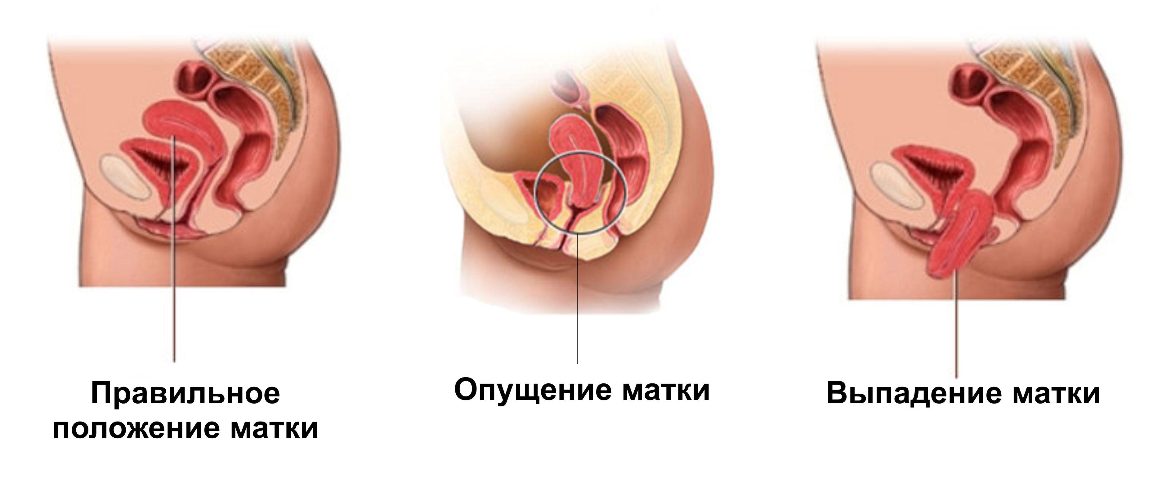 Операция выпадения матки пожилых женщин